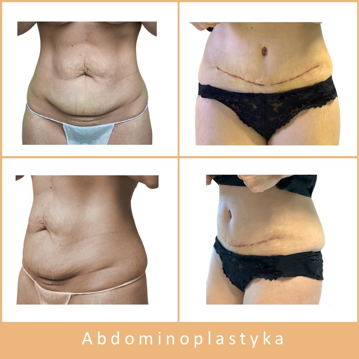 01 abdominoplastyka JPG