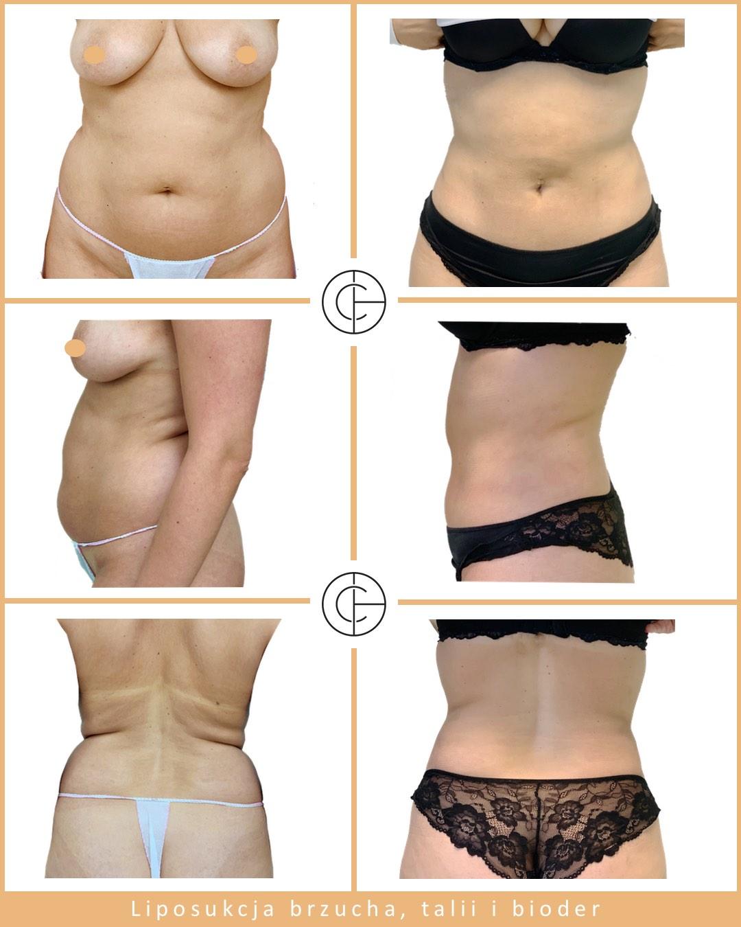 02 liposukcja brzuch, talia biodra2 JPG